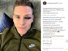 O resultado da dividida. Instagram/kevingameirooff