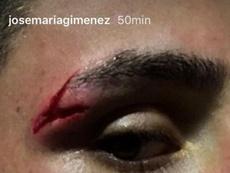 Giménez acabó con esta brecha en la ceja. Instagram/JoseMaríaGiménez