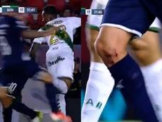 Así quedó la rodilla de Pablo Pérez tras clavarle los tacos. Capturas/TNTSportsLA
