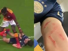La tremenda herida de guerra del 'Clásico' turco. Capturas/Fenerbahçe