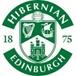 Hibernian Sub 20