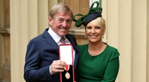 Dalglish tested positive for the virus. AFP