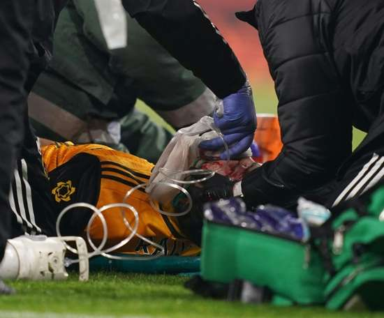 Wolves forward Raul Jimenez receives treatment after a clash of heads. AFP