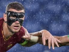 Masked man Dzeko 'can't see very well' but still scores. AFP