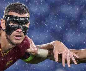 Masked man Dzeko 'can't see very well' but still scores. AFP