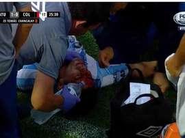 Así quedó Acosta tras el planchazo de Chancalay. Captura/FoxSports