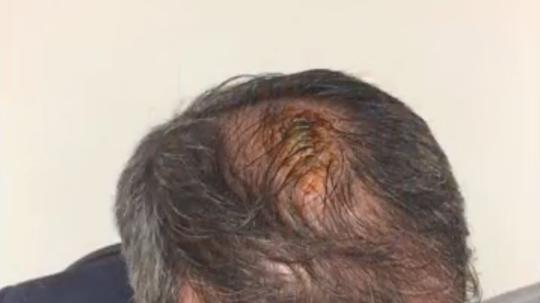 Güneş tuvo que ser hospitalizado tras sufrir el impacto de un objeto. Captura/Youtube
