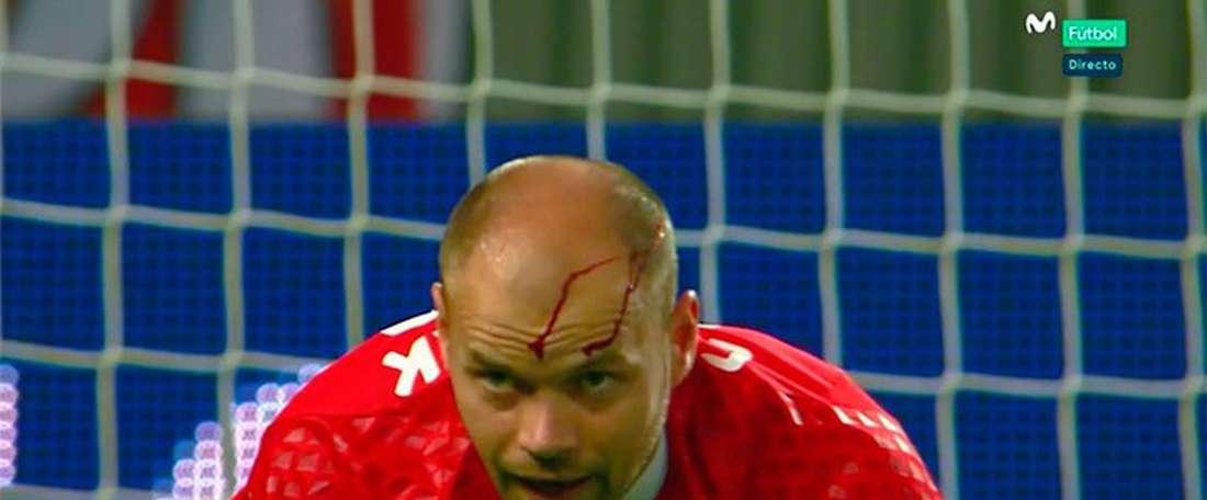 El futbolista tuvo que ser atendido para frenar la hemorragia. Twitter/Casadelfutbol
