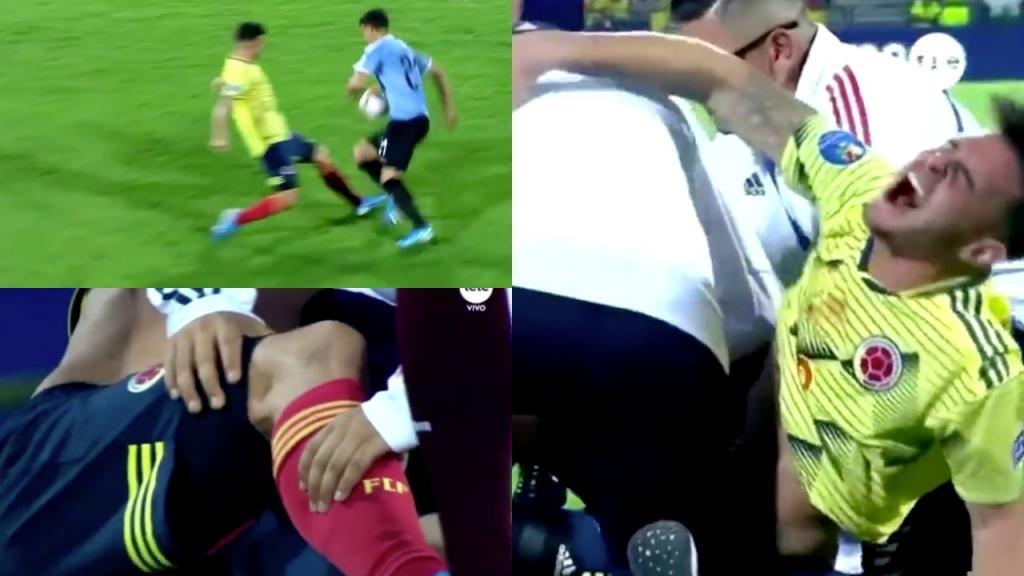 América pierde a Benedetti por lesión de ligamento cruzado anterior