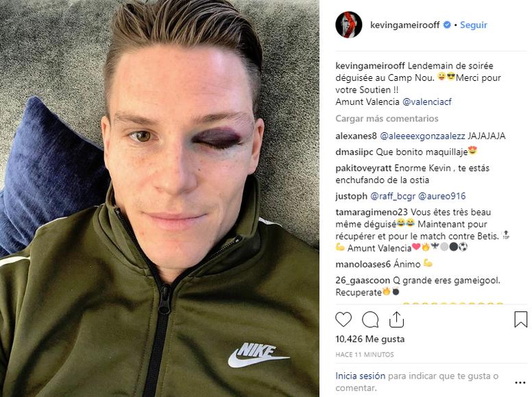 Tras un duro choque con Piqué. Instagram/kevingameirooff