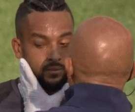 L'oeil de Walcott après un contact avec Cech. Capture/Skysports