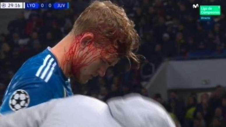 De Ligt sai de campo sangrando e o Lyon marca. Captura/MovistarLigadeCampeones