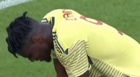 Zapata se lesionó ante Chile. GolTV