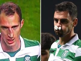 André Pinto et Petrovic ont eu la poisse. Capture/SporTV/Sporting_CP