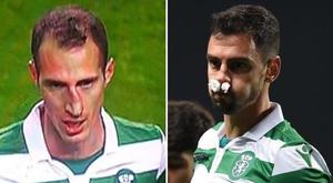Ambos partiram o nariz. Captura/SportTV/Sporting_CP