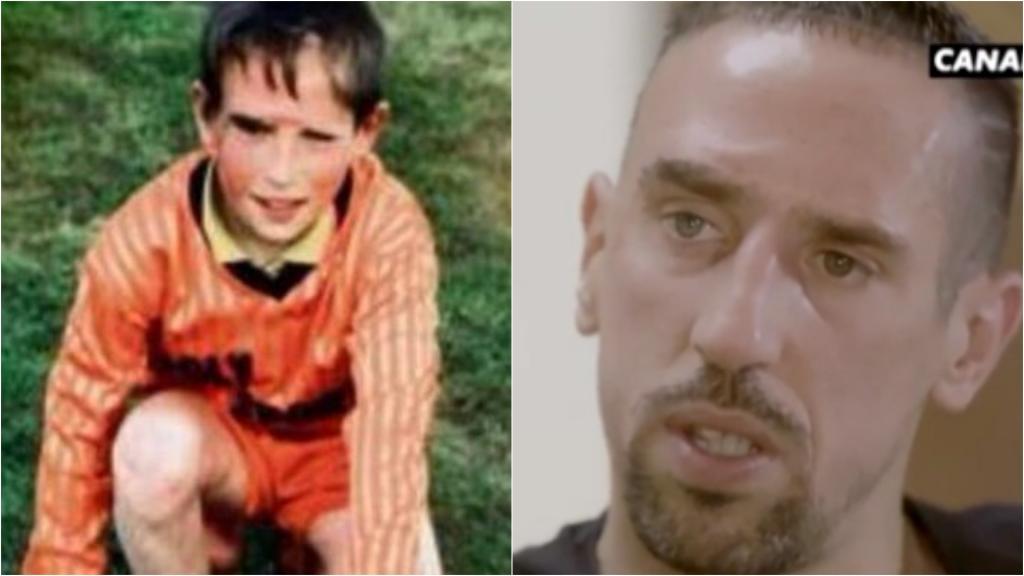 Ribéry habló de la cicatriz que marcó su cara y su vida