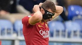 Edin Dzeko jugó con máscara pese a los consejos médicos. Twitter/ASRomaEspanol