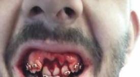 El jugador del Jaén sufrió un duro golpe en la boca. @D_Bardanca