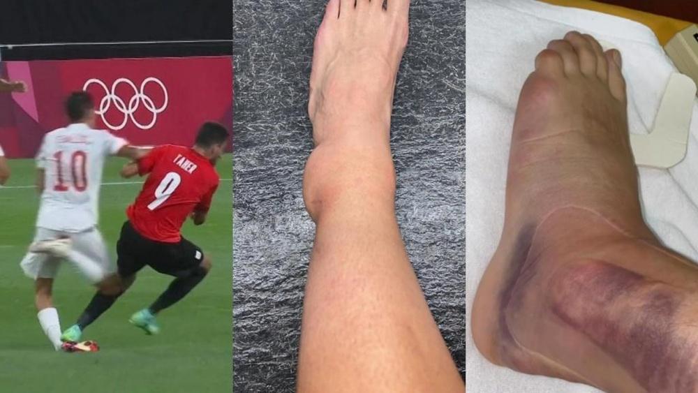 Ceballos sufrió un esguince de tobillo. Capturas/TVE-Instagram/danifuli10