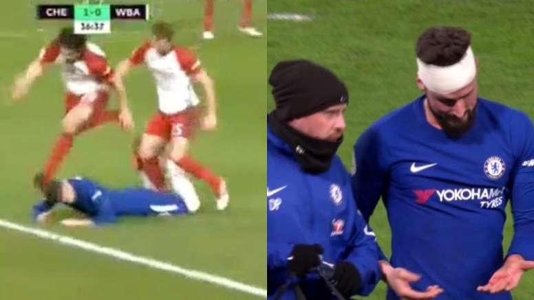 Giroud acabó con una venda en la cabeza por una patada. Captura/Movistar+