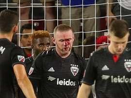 Wayne Rooney suffered a broken nose. GOAL