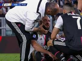 Higuaín assusta com um golpe violento no nariz. Captura/Movistar+
