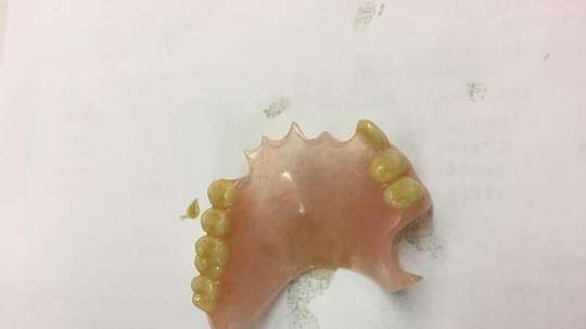 Accrington Stanley staff found a set of false teeth as Saturday's game. Twitter/ASFCofficial