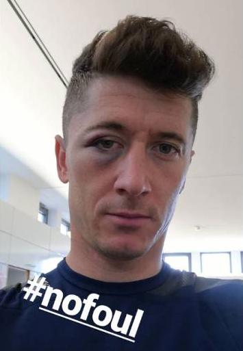 Así le quedó la cara a Lewandowski tras el partido ante el Sevilla. Instagram/_rl9