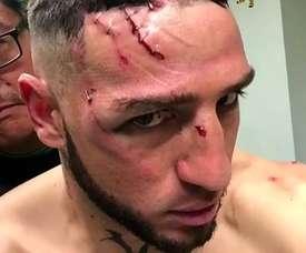 Mauricio Viana sufrió unas heridas impactantes. Instagram/MarcoMedel
