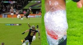 Agüero s'est-il blessé de lors de la finale de l'EFL Cup ? Capture/Beinsports