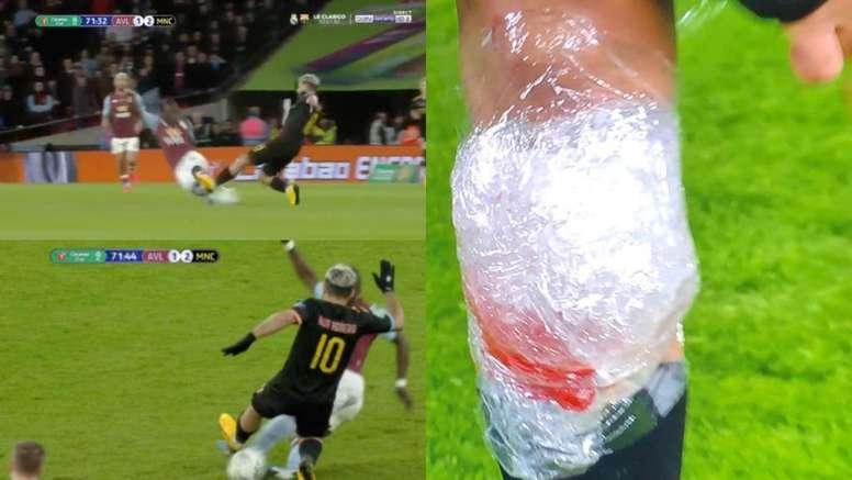 Se fue lesionado Agüero de la final de la EFL Cup? - BeSoccer