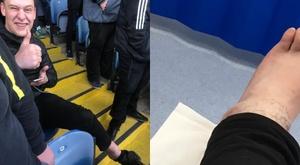 Matt Richardson broke his ankle during Leeds United's celebrations. Twitter/squidgerone