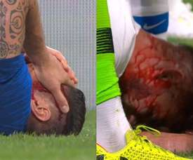 Giroud and Miazga suffered serious head injuries. BeSoccer