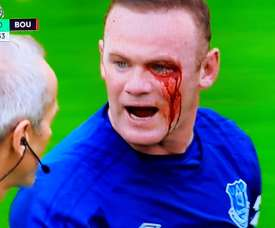 Rooney was caught in the face against Bournemouth. Twitter