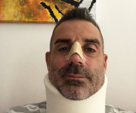 Sorrentino, avec une minerve et une bandage sur le nez. Twitter